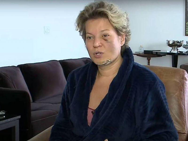Após câmeras não registrarem suspeitos, Joice Hasselmann diz não confiar na PF para investigar supostas agressões